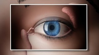 An Intac is a curved piece of plastic placed into the cornea
