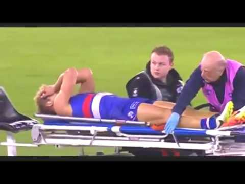 Video Western Bulldogs midfielder Mitch Wallis breaks his leg in horrific incident vumanhtoan3