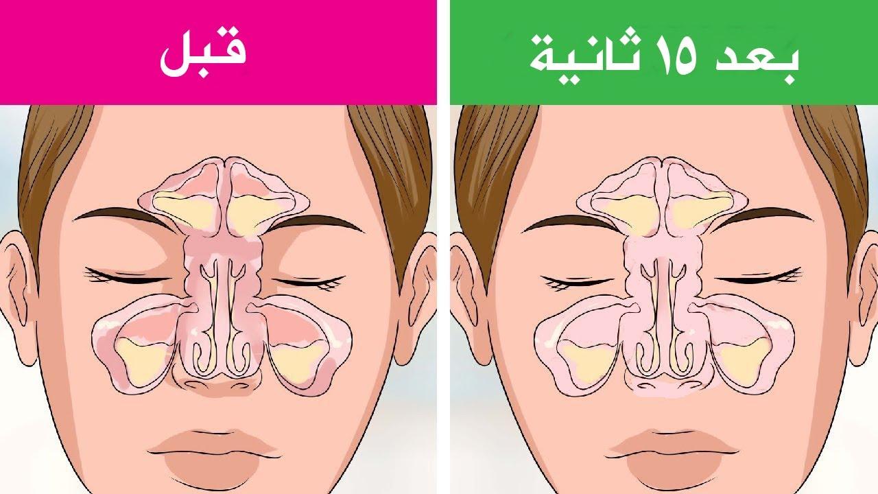 علاج انسداد الانف والتهاب الجيوب الانفية فى 15 ثانية فقط أسهل الطرق لعلاج الزكام في بيتك وبدون أدوية Youtube