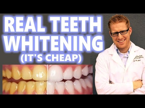 Teeth Whitening at Home Cheap How to Peroxide Hacks DIY Bleach Trays Kit Best 2016 Overnight Results