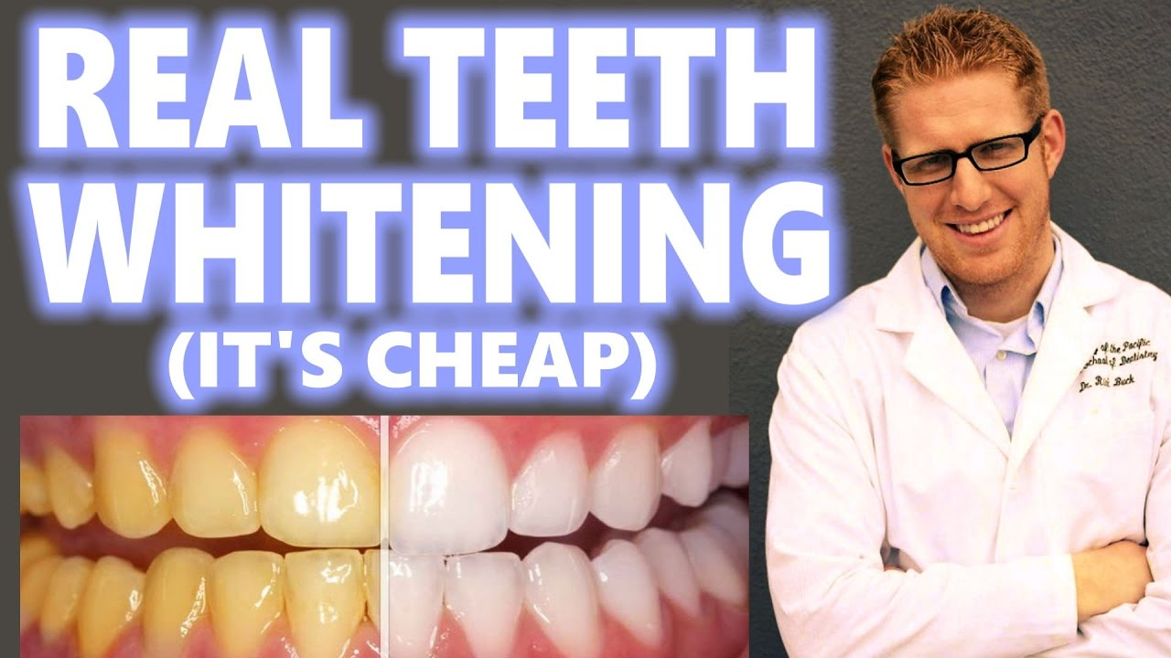 Teeth Whitening At Home Cheap How To Peroxide Hacks Diy Bleach Trays