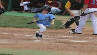 Bat Boy Dies After Being Hit By Player Taking Practice Swings