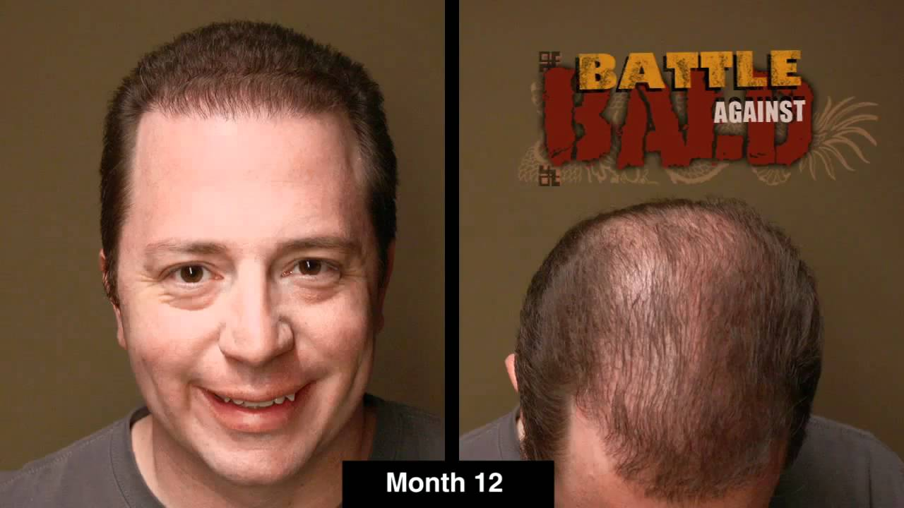 Bosley Hair Transplant Results After 12 Months Time Lapse Youtube