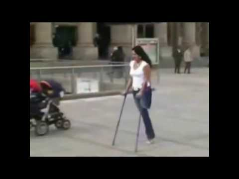 amputee, One Leg Woman