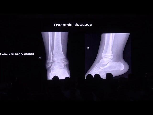 Osteomielitis en niños. Diego Jaramillo