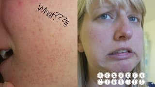 Face Rash From HELL!! | WHAT CAUSED IT?? | Skincare Update | Rosacea Diaries