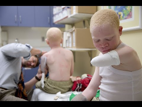 Global Journalist: Africans with albinism face discrimination, attacks