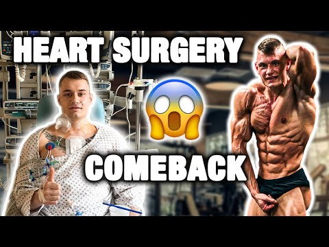 Body Transformation after open heart surgery
