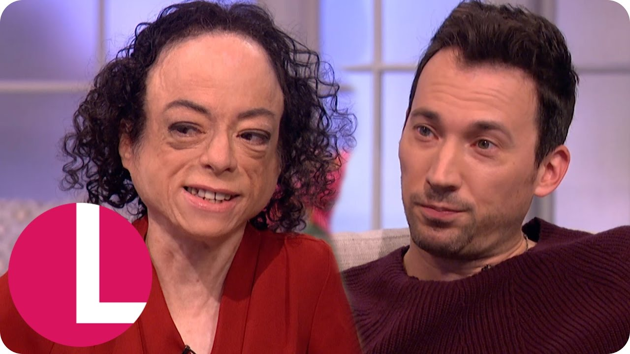 Download Liz Carr and David Caves Talk 20 Years of Silent Witness   Lorraine