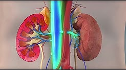 hqdefault - Rhabdomyolysis Causing Kidney Failure