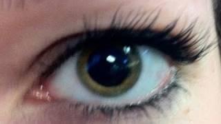 Laser Eye Vision
