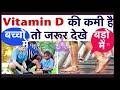 Vitamin D ( कैल्शियम ) की कमी है तो कैसे पूरा करे,Calcium For Strong Bones,Deficiency