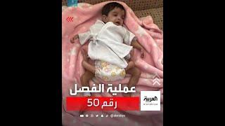 العملية رقم 50 في سلسلة فصل التوائم في السعودية