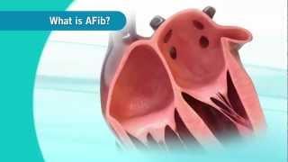 Video An overview of Atrial Fibrillation download MP3, 3GP, MP4, WEBM, AVI, FLV November 2017
