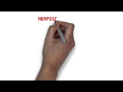 Herpeset Cold Sore Relief Where To Buy Herpeset Youtube