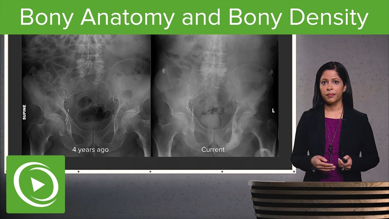 Imaging of Bones: Fractures, Bony Anatomy and Bony Density – Radiology | Lecturio