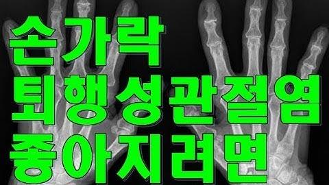 손가락 퇴행성관절염 좋아지려면? Arthritis