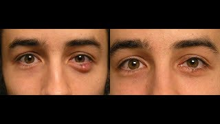 Chloramphenicol for eye infections. Side effects and information in hindi