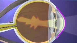 Astigmatism Correcting Lens