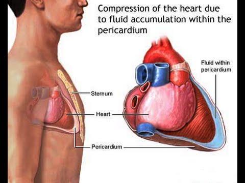 cardiac tamponade - youtube, Skeleton