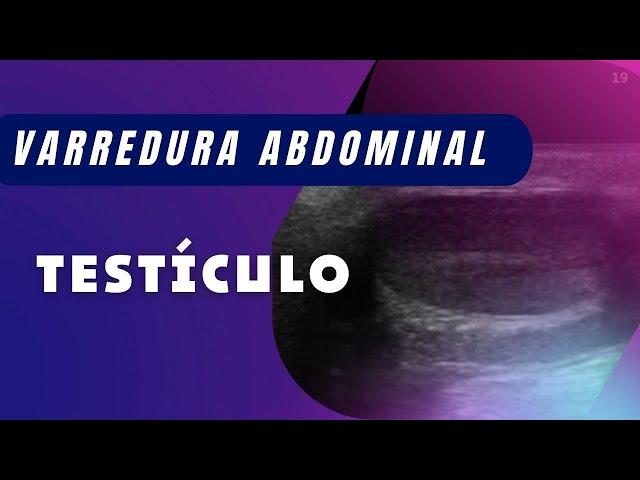 TÉCNICA DE VARREDURA DOS TESTÍCULOS