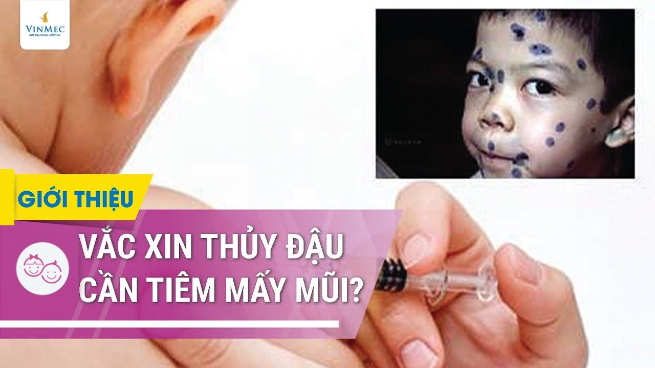 Vacxin thủy đậu cần tiêm mấy mũi?