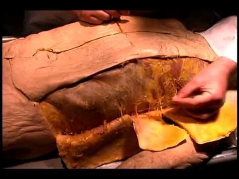 Human anatomy real dissection 1 youtube human anatomy real dissection 1 publicscrutiny Images