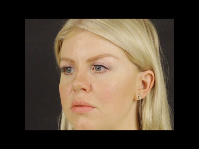 90° TAS Video | 8 Months After Revision Closed Atraumatic Rhinoplasty