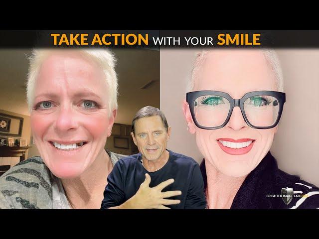 83% souffrent d'anxiété dentaire - Agissez sans peur ni douleur - Facettes cosmétiques Aucun dentiste