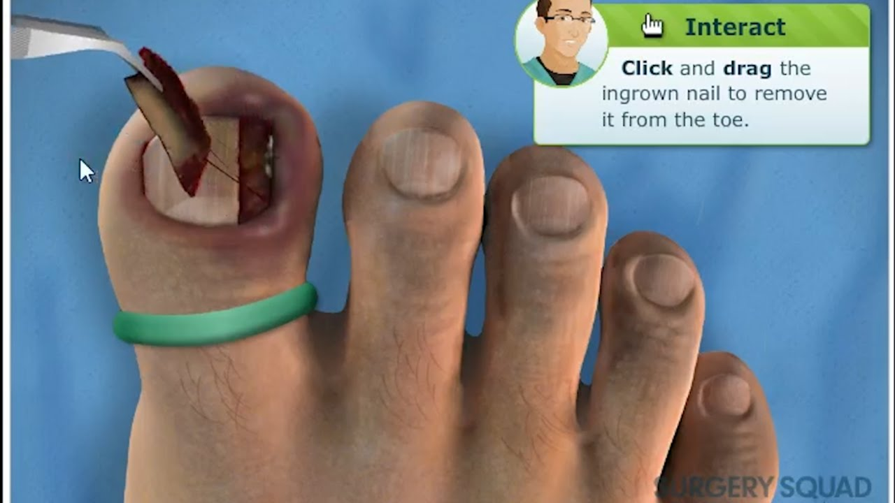 Ingrown Toenail Removal Surgery Simulation (This Hurt Just Playing ...