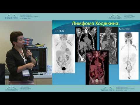 Щитовидная железа (фото)