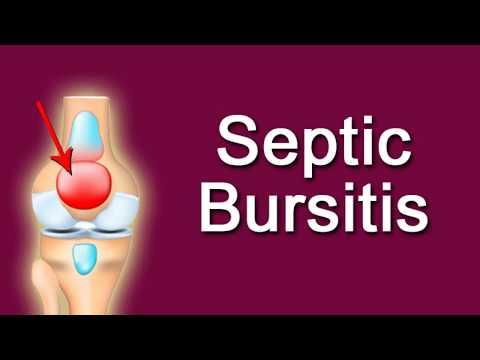 Septic Bursitis