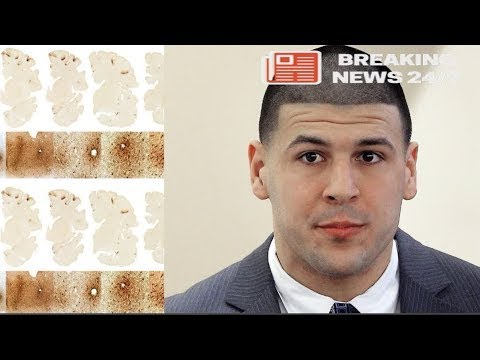 Aaron Hernandez Found to Have Severe C.T.E.