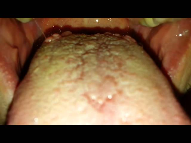 Bumps On Back Of Tongue Throat 48
