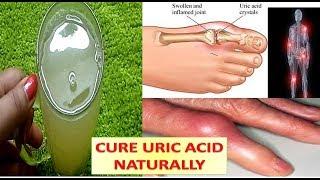 यूरिक एसिड को जड़ से खत्म कर देता है ये पानी Uric Acid Treatment Home Remedies & Acupressure Point