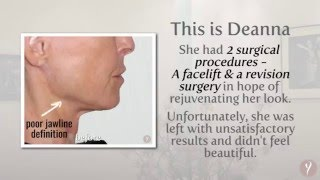 Y LIFT ® 2016 - Deanna | Instant, Non Surgical Facelift