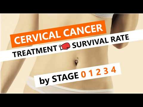 Cervical Cancer Stage 0 1 2 3 4 Treatment, Survival Rate and Life Expectancy