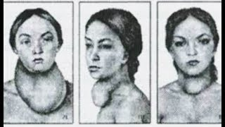 Увеличение щитовидки, зоб, удаление зоба © Diagnosis, surgical treatment of goiter