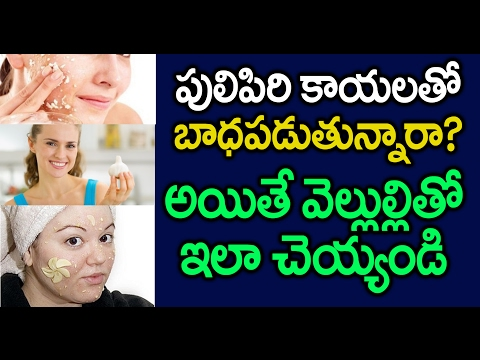 How to Remove Warts I Treatment for Warts-Pulipiri I పులిపిరికాయలతోబాధపడుతున్నారా?I Top Telugu Viral