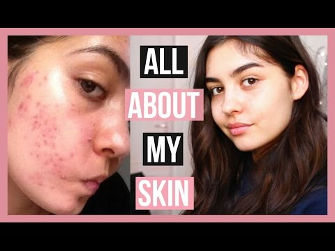 How I Got Rid Of Acne And Marks + My Tips On Preventing Breakouts