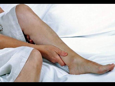 De pierna adolorida en noche síndrome la
