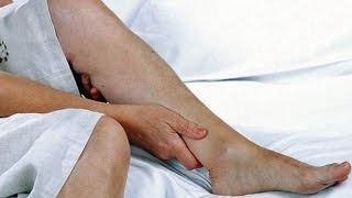 Inquietas piernas severos síntomas de