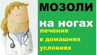 Мозоли на ногах: лечение в домашних условиях(Мозоли на ногах – это распространенная проблема, которая не представляет угрозы здоровью человека, но..., 2015-11-14T23:24:29.000Z)
