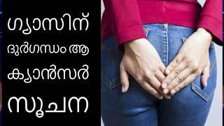 ഗ്യാസിന് ദുര്ഗന്ധം ആ ക്യാന്സര് സൂചന||Health Tips Malayalam