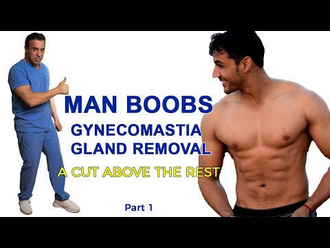 Gynecomastia Gland Removal Surgery Part 1