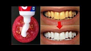 2 Dakikadan Daha Az Bir Sürede Dişleri Beyazlatmak İçin Doktora Gitmeye Son