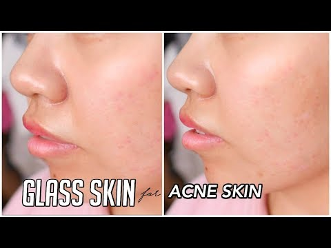How To Get GLASS SKIN for ACNE SKIN!