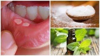 7 traitements maison pour guérir les plaies de la bouche