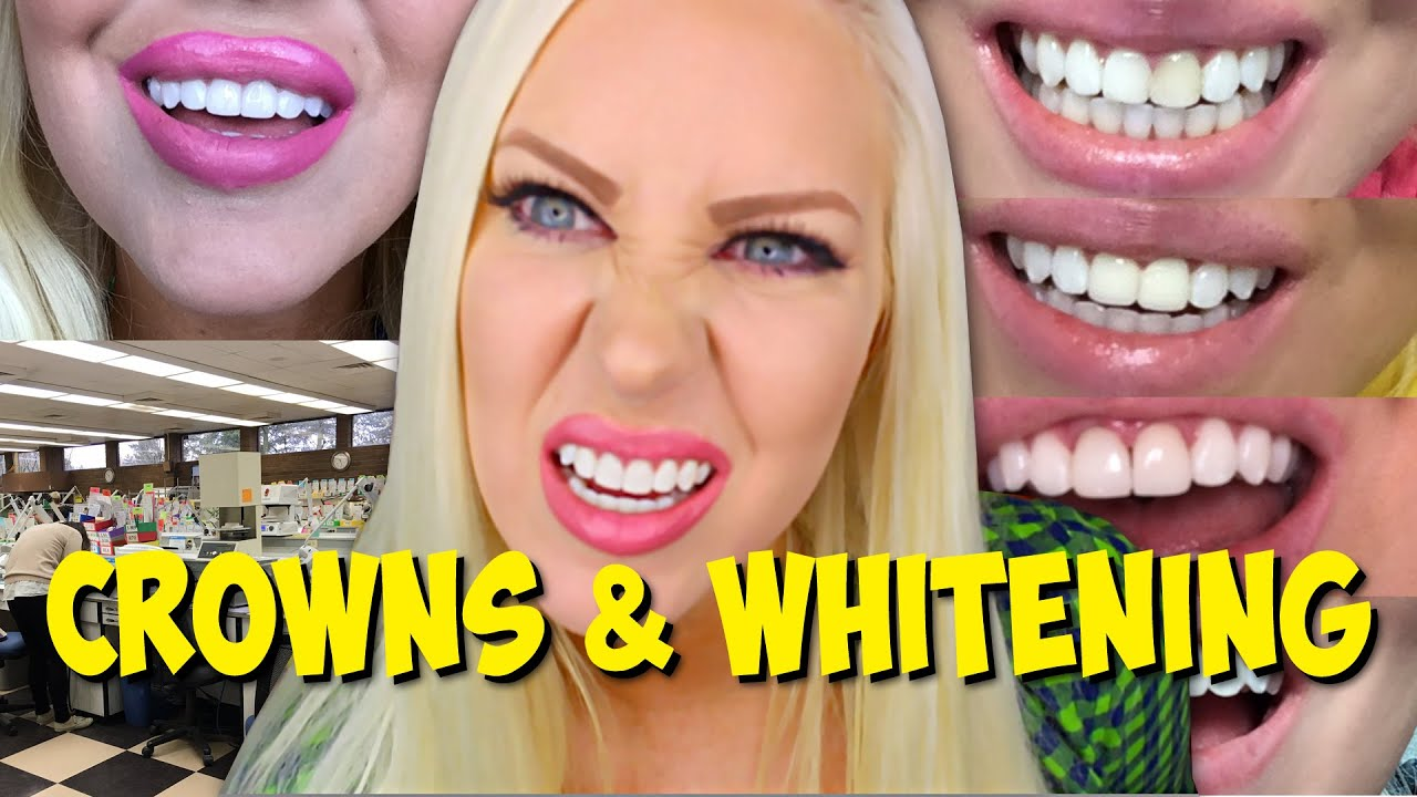 My Crowns Teeth Whitening Procedure Diary Youtube