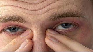 5 طرق للتخلص من ترهلات الذراعين